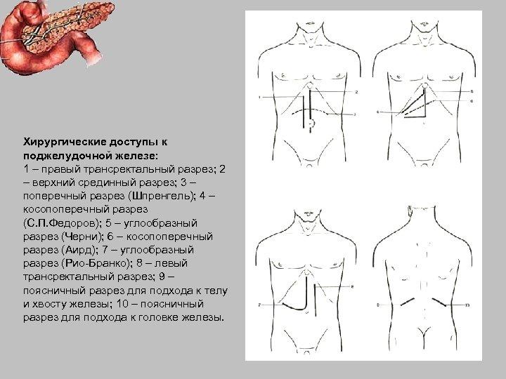 Хирургические доступы к поджелудочной железе: 1 – правый трансректальный разрез; 2 – верхний срединный