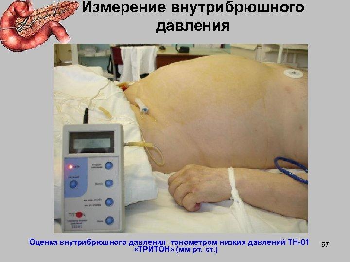 Измерение внутрибрюшного давления Оценка внутрибрюшного давления тонометром низких давлений ТН-01 «ТРИТОН» (мм рт. ст.