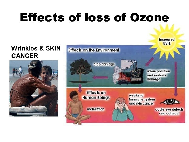 Effects of loss of Ozone Wrinkles & SKIN CANCER