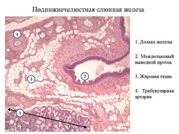 Поднижнечелюстная слюнная железа 4 1. Долька железы 2. Междольковый выводной проток 3 2 3.