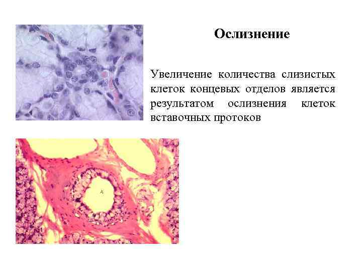 Ослизнение Увеличение количества слизистых клеток концевых отделов является результатом ослизнения клеток вставочных протоков