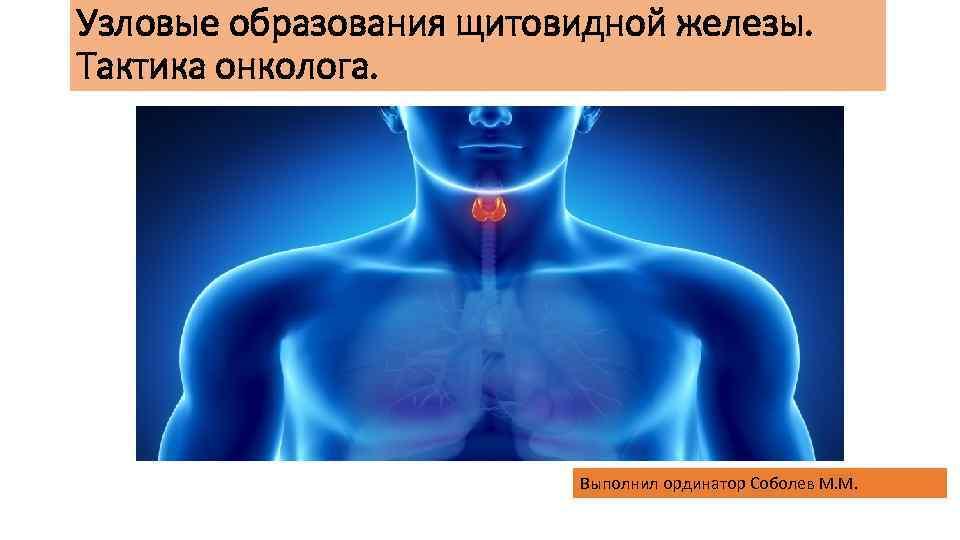 Узловые образования щитовидной железы. Тактика онколога. Выполнил ординатор Соболев М. М.