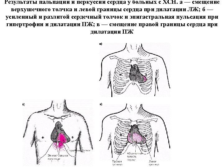 Результаты пальпации и перкуссии сердца у больных с ХСН. а — смещение верхушечного толчка