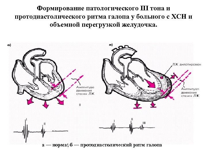 Формирование патологического III тона и протодиастолического ритма галопа у больного с ХСН и объемной