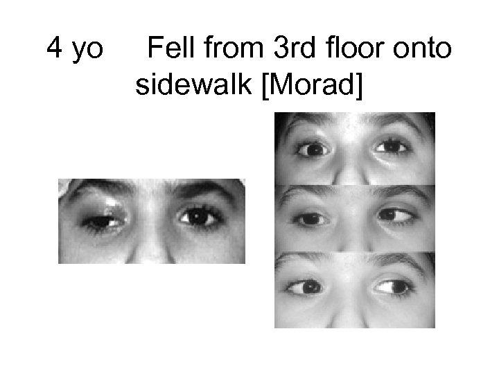 4 yo Fell from 3 rd floor onto sidewalk [Morad]