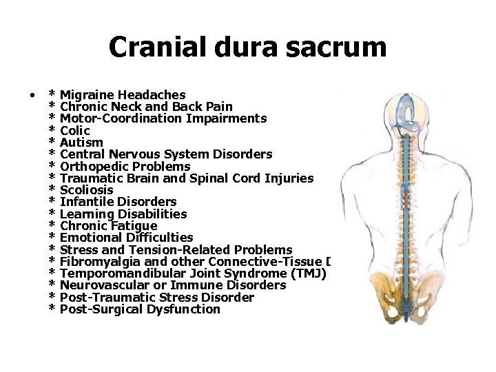Cranial dura sacrum • * Migraine Headaches * Chronic Neck and Back Pain *