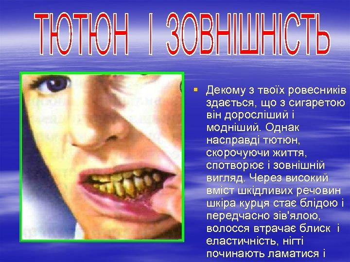 § Декому з твоїх ровесників здається, що з сигаретою він доросліший і модніший. Однак