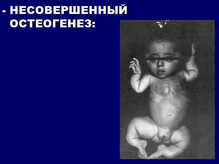- НЕСОВЕРШЕННЫЙ ОСТЕОГЕНЕЗ: