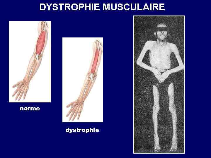 DYSTROPHIE MUSCULAIRE norme dystrophie