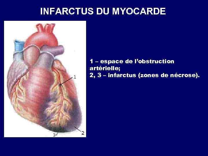 INFARCTUS DU MYOCARDE 1 – espace de l'obstruction artérielle; 2, 3 – infarctus (zones