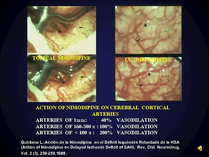 TOPICAL NIMODIPINE I. V. NIMODIPINE ACTION OF NIMODIPINE ON CEREBRAL CORTICAL ARTERIES OF 1