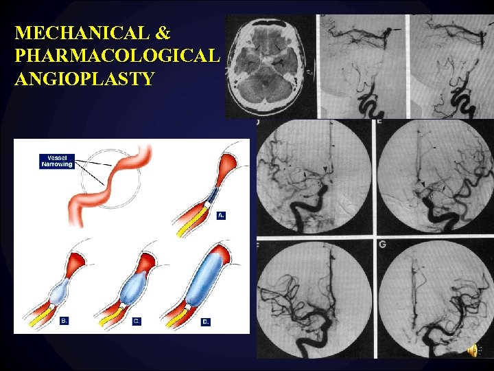 MECHANICAL & PHARMACOLOGICAL ANGIOPLASTY