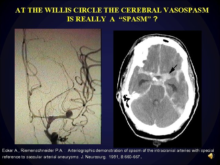"AT THE WILLIS CIRCLE THE CEREBRAL VASOSPASM IS REALLY A ""SPASM"" ? Ecker A."