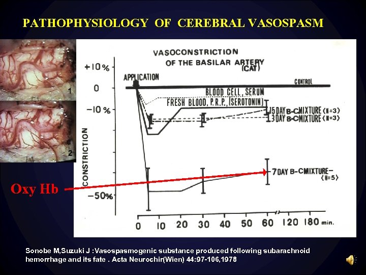 PATHOPHYSIOLOGY OF CEREBRAL VASOSPASM Oxy Hb Sonobe M, Suzuki J : Vasospasmogenic substance produced