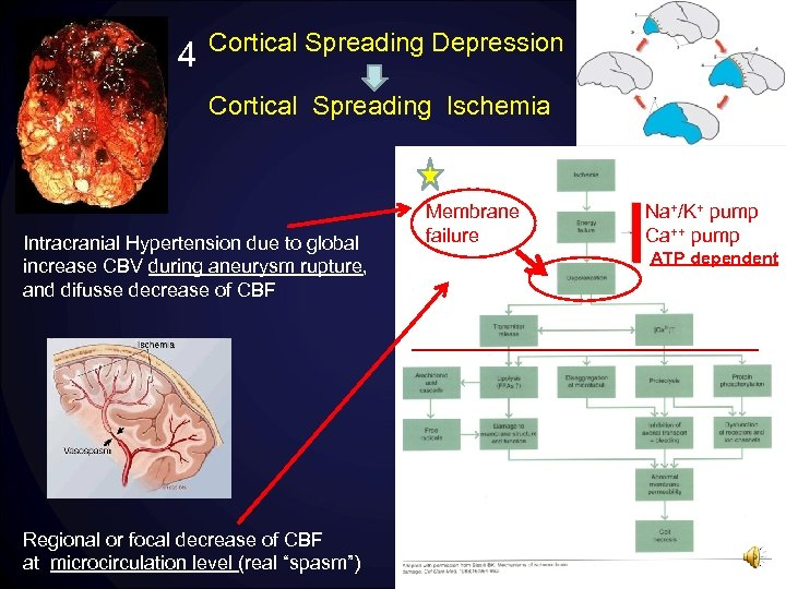 4 Cortical Spreading Depression Cortical Spreading Ischemia Intracranial Hypertension due to global increase CBV