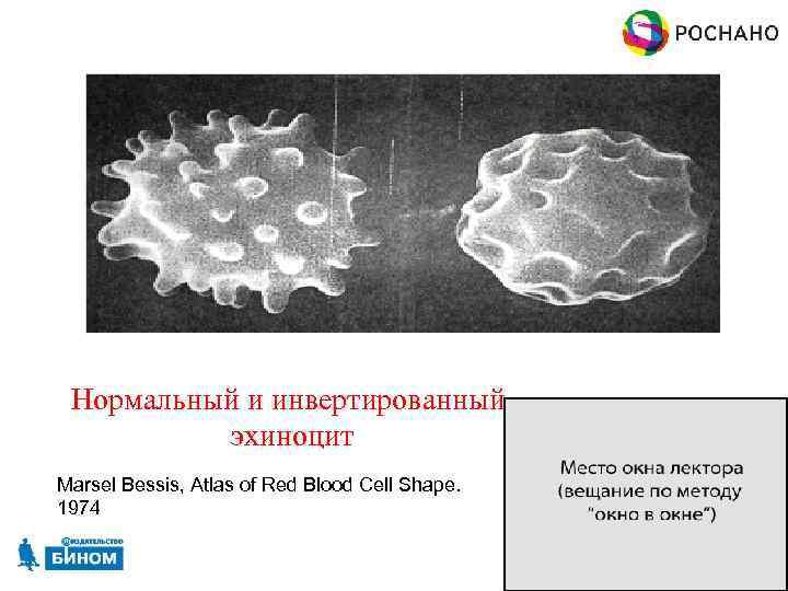 Нормальный и инвертированный эхиноцит Marsel Bessis, Atlas of Red Blood Cell Shape. 1974