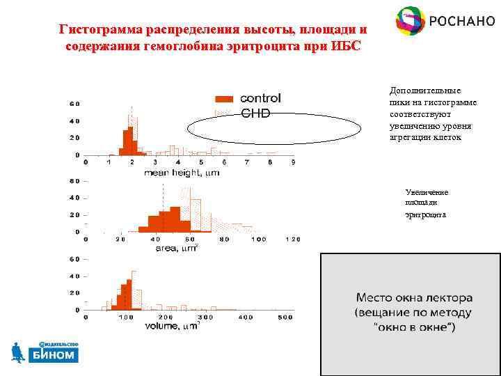 Гистограмма распределения высоты, площади и содержания гемоглобина эритроцита при ИБС Дополнительные пики на гистограмме