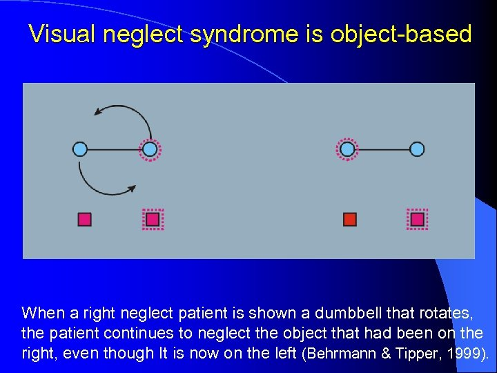 Visual neglect syndrome is object-based When a right neglect patient is shown a dumbbell