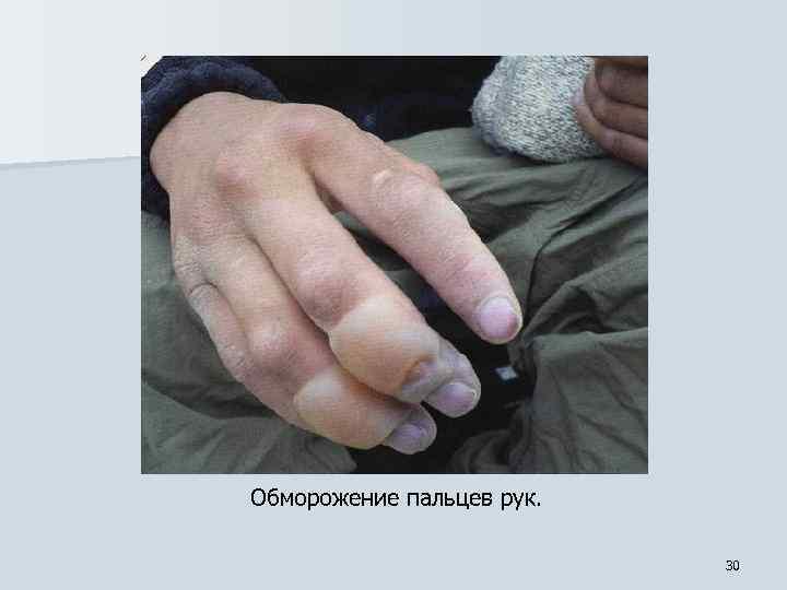 Обморожение пальцев рук. 30
