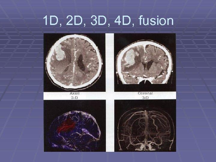 1 D, 2 D, 3 D, 4 D, fusion