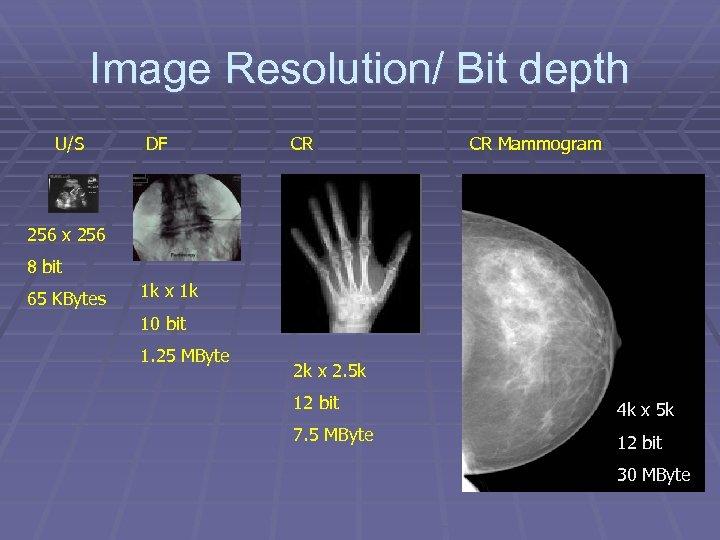 Image Resolution/ Bit depth U/S DF CR CR Mammogram 256 x 256 8 bit