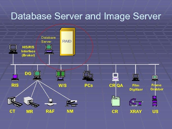 Database Server and Image Server Database Server RAID HIS/RIS Interface (Broker) DG RIS CT