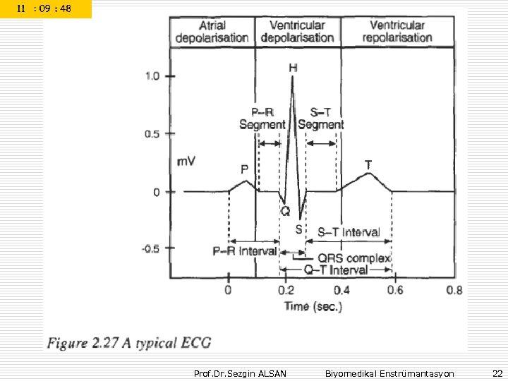 Prof. Dr. Sezgin ALSAN Biyomedikal Enstrümantasyon 22