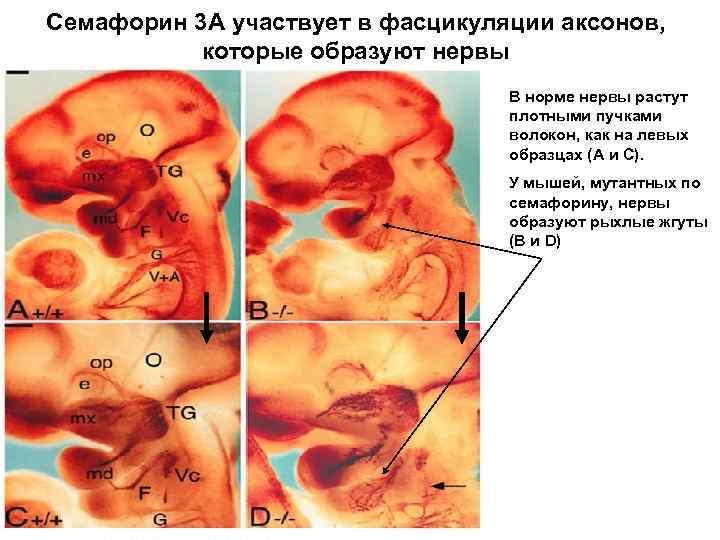 Семафорин 3 А участвует в фасцикуляции аксонов, которые образуют нервы В норме нервы растут