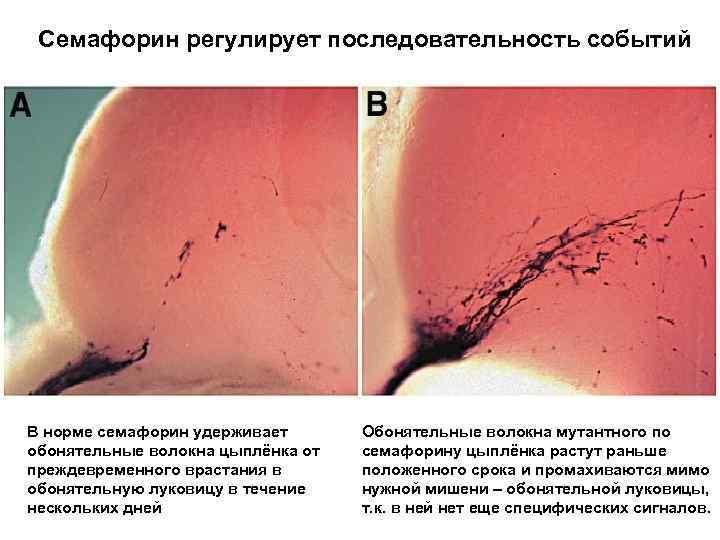 Семафорин регулирует последовательность событий В норме семафорин удерживает обонятельные волокна цыплёнка от преждевременного врастания