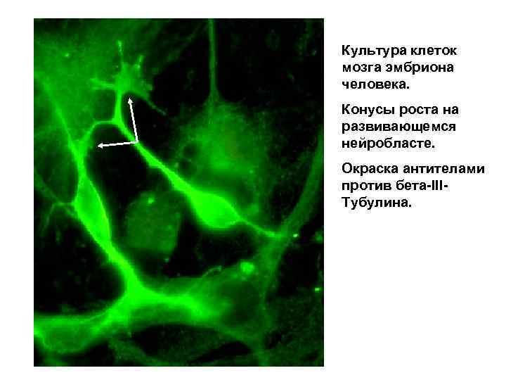 Культура клеток мозга эмбриона человека. Конусы роста на развивающемся нейробласте. Окраска антителами против бета-IIIТубулина.