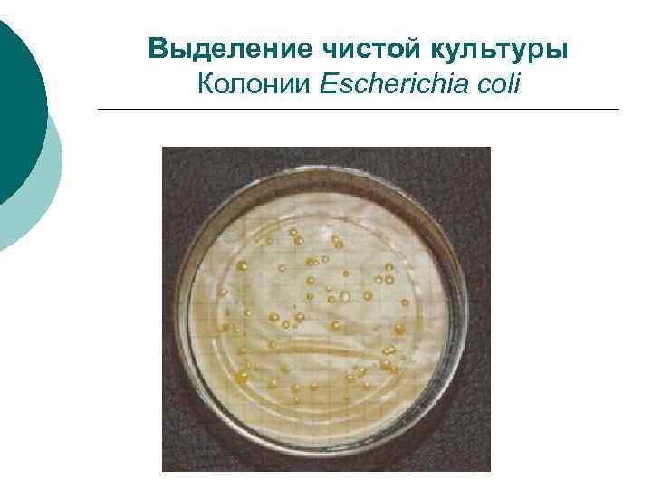 Выделение чистой культуры Колонии Escherichia coli