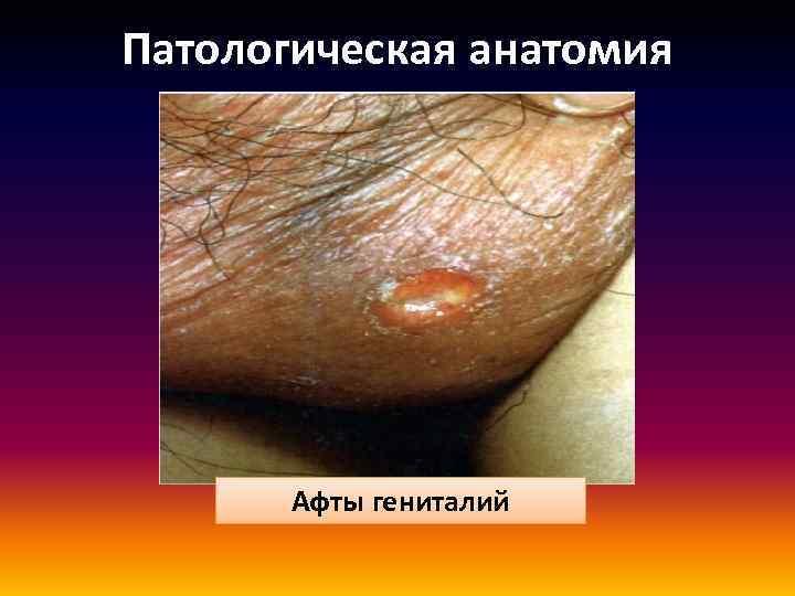Патологическая анатомия Афты гениталий