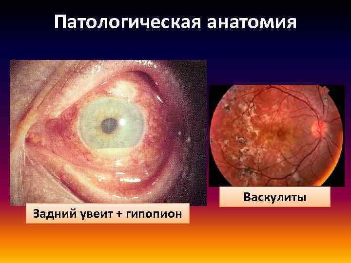Патологическая анатомия Задний увеит + гипопион Васкулиты