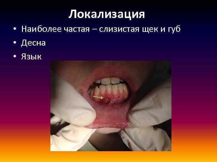 Локализация • Наиболее частая – слизистая щек и губ • Десна • Язык