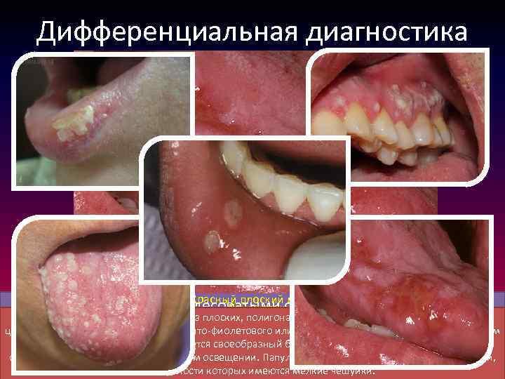 Дифференциальная диагностика Эксфолиативный хейлит Красный плоский лишай Нижняя губа отечна, с белесоватыми очажками, имеются