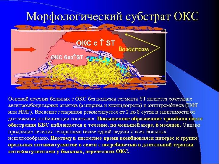 Морфологический субстрат ОКС с ST Вазоспазм vasospasm ОКС без ST Основой лечения больных с