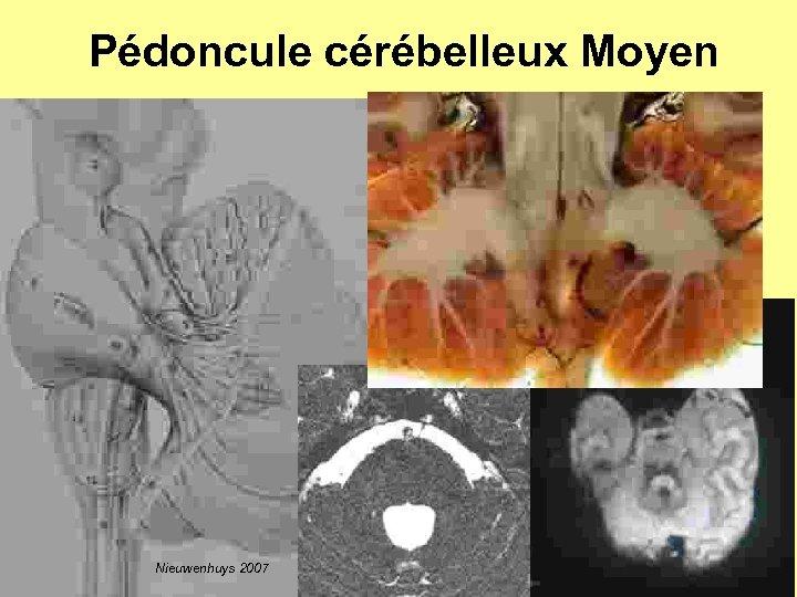Pédoncule cérébelleux Moyen Nieuwenhuys 2007