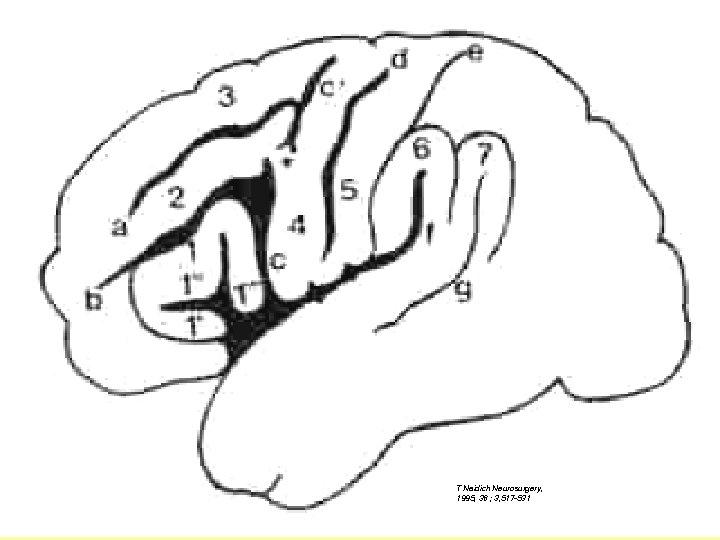 T Naidich Neurosurgery, 1995, 36 ; 3, 517 -531