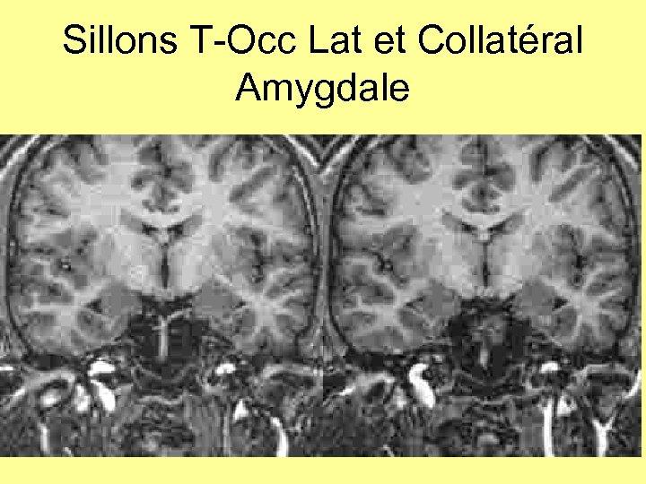 Sillons T-Occ Lat et Collatéral Amygdale