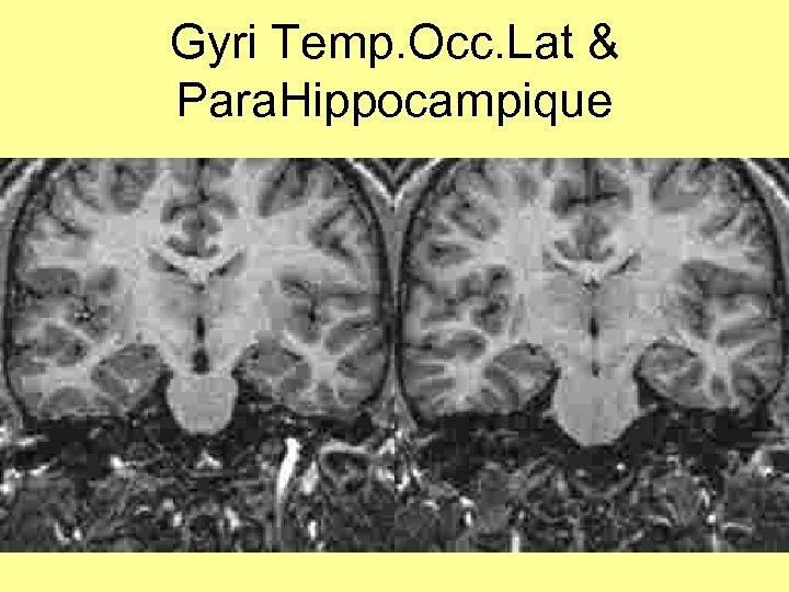 Gyri Temp. Occ. Lat & Para. Hippocampique