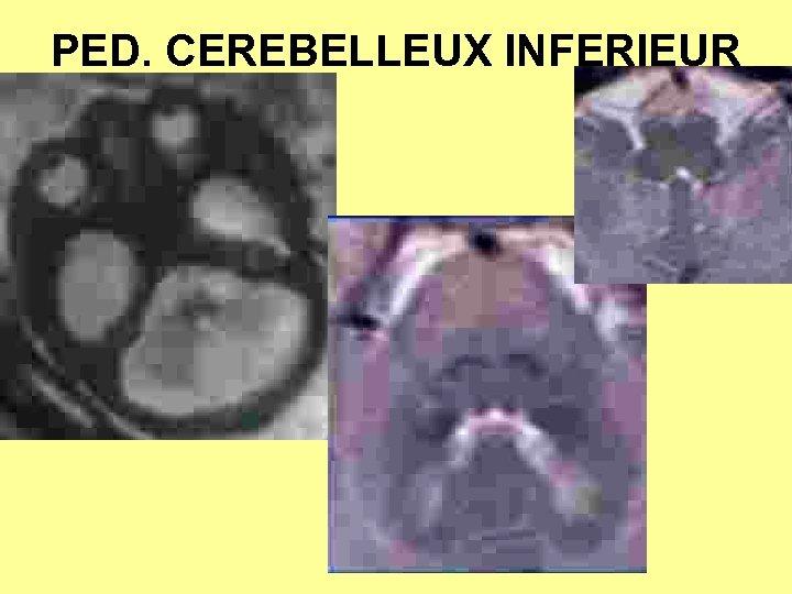 PED. CEREBELLEUX INFERIEUR