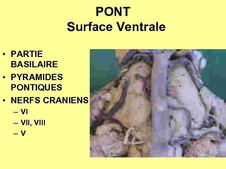 PONT Surface Ventrale • PARTIE BASILAIRE • PYRAMIDES PONTIQUES • NERFS CRANIENS – VII,