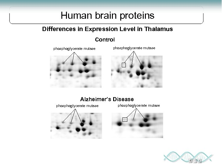 Human brain proteins Differences in Expression Level in Thalamus Control phosphoglycerate mutase Alzheimer's Disease