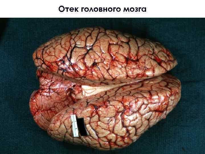 комплектацию, картинки отек головного мозга закуска