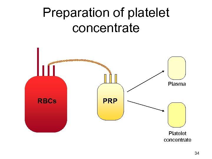 Preparation of platelet concentrate Plasma RBCs PRP Platelet concentrate 34