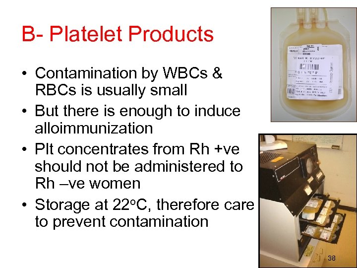 B- Platelet Products • Contamination by WBCs & RBCs is usually small • But