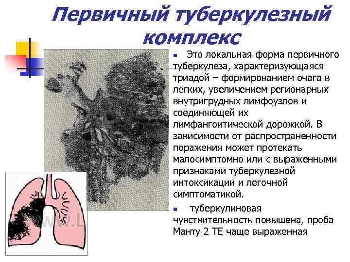 Первичный туберкулезный комплекс Это локальная форма первичного туберкулеза, характеризующаяся триадой – формированием очага в