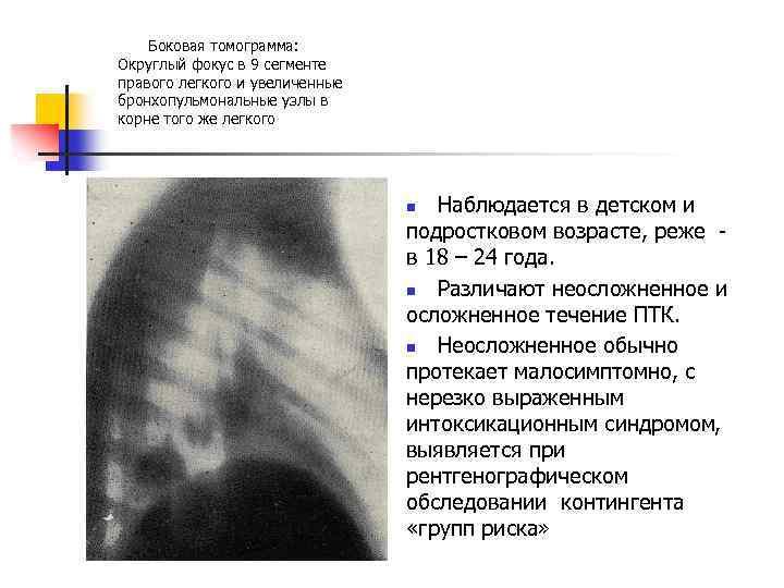Боковая томограмма: Округлый фокус в 9 сегменте правого легкого и увеличенные бронхопульмональные узлы