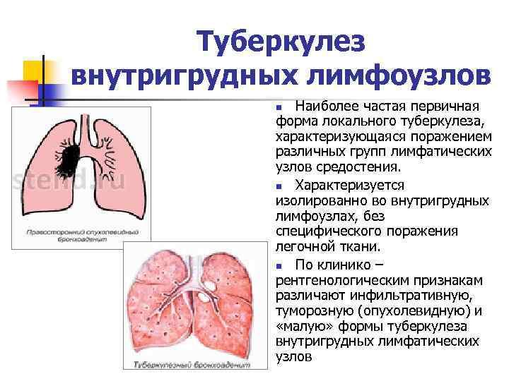 Туберкулез внутригрудных лимфоузлов Наиболее частая первичная форма локального туберкулеза, характеризующаяся поражением различных групп лимфатических