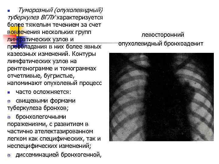 Туморозный (опухолевидный) туберкулез ВГЛУ характеризуется более тяжелым течением за счет вовлечения нескольких групп
